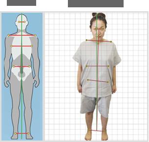 正面からみた姿勢分析