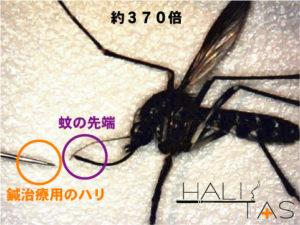 鍼(はり)の先端と蚊の先端を比較